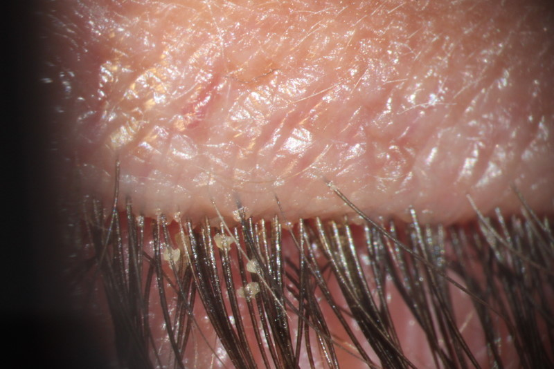 New Approaches for Fighting Demodex Mites - News Medical